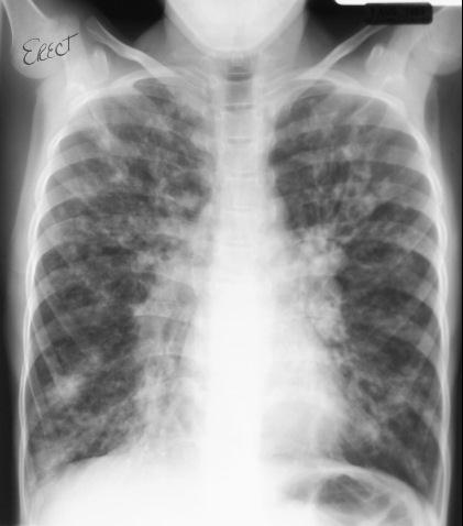 New medicine Kalydeco (ivacaftor), offers therapeutic innovation for treatment of cystic fibrosis